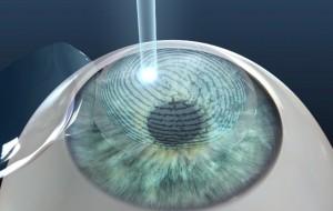 LASIK und LASEK OP - Augenlasern in der Türkei