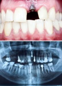 falsche implantate zahnbehandlung