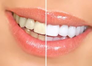 Bleaching - Zahnbehandlung in der Türkei